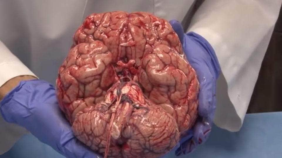 brainjoioi