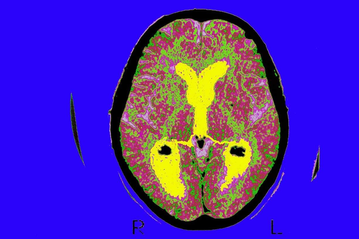 A_brain_scan_of_a_patient_with_Alzheimer's